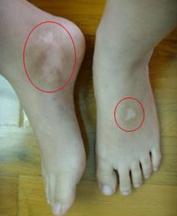 如何正确治疗腿部白癜风