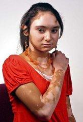 哪些因素容易导致女性患上白癜风呢
