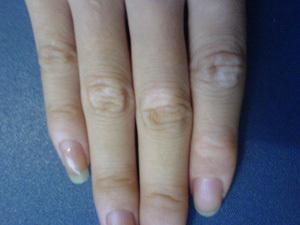 治疗白癜风专科医院:如何预防手部白癜风