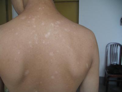 治疗白癜风专科医院:背部白癜风治疗方法